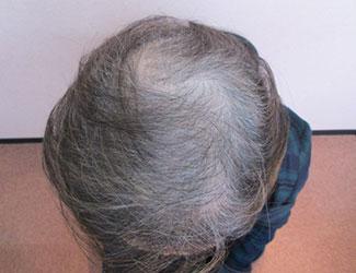 71歳女性