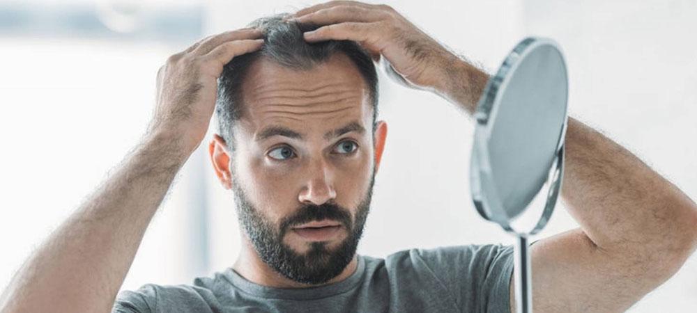 薄毛の原因と治療法