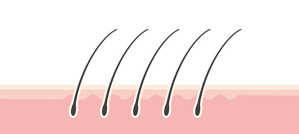 髪の軟毛化